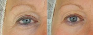 NBE-500 Resultat efter två behandlingar. Boka din tid online eller ring Salong Unik 021 - 80 11 12