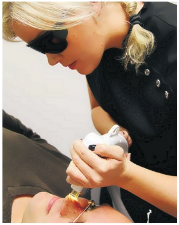 IPL är vidareutveckling av laserbehandlingen och används för hudföryngring, ta bort oönskad hårväxt permanent, behandla pigment, kärl • Salong Unik Västerås